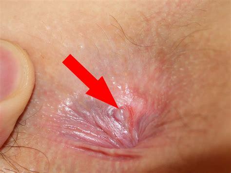 anal tear medical jpg 1467x1100